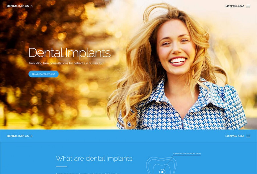 dental-implants-product