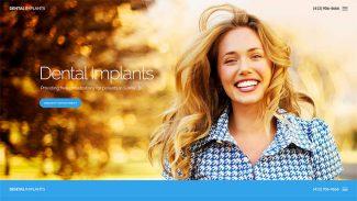 dental-implants-product